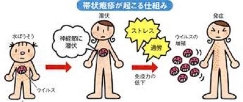 帯状疱疹の進行