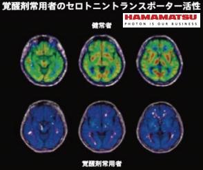 覚醒剤常用者の脳
