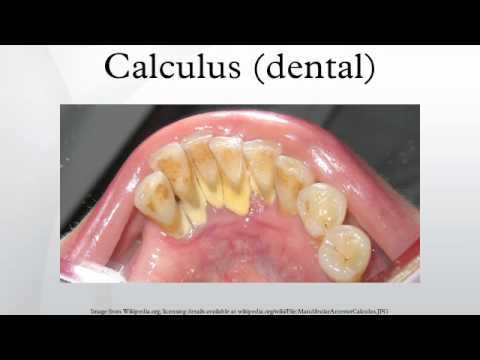 denatal calculus
