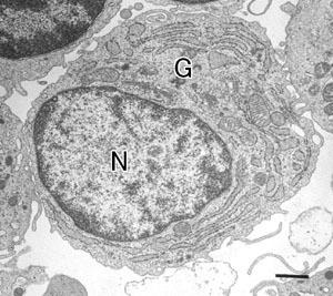plasma cell em