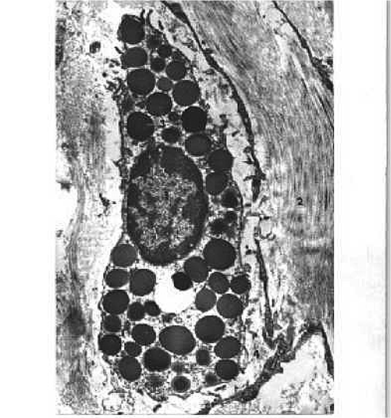 mast_cells_em-14866B57C413963F81B.png