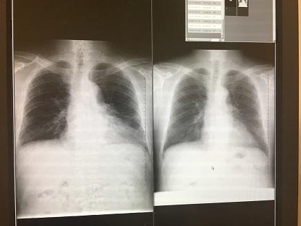 1312017 呼吸器内科S3