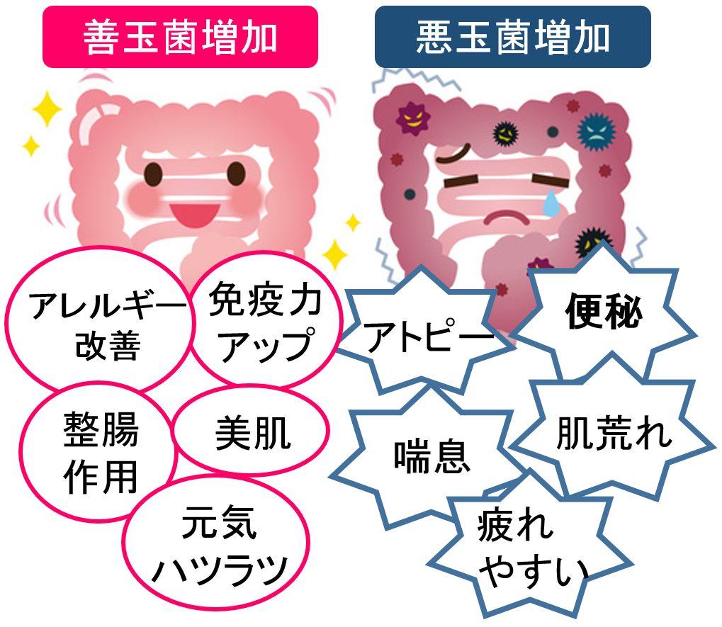 善玉菌と悪玉菌の比較画像