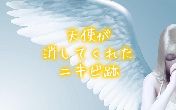 天使が消してくれたニキビ跡【私の不思議体験談(実話)】