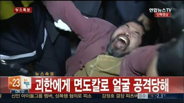 ③顔を切り裂かれたリッパート駐韓米国大使のお別れ会がドタキャン!