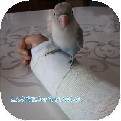 ①手首骨折