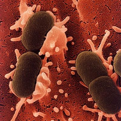 sky北極のバクテリア