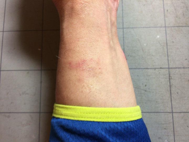 シリコンゴムアレルギー-(2)
