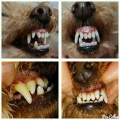 親子の歯並び コラージュ