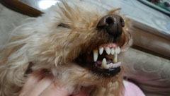 NonRose 歯並び2