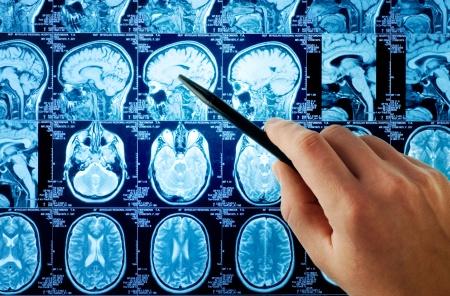 MRI01.jpg