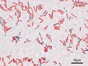 180px-Bacillus_subtilis_Spore.jpg